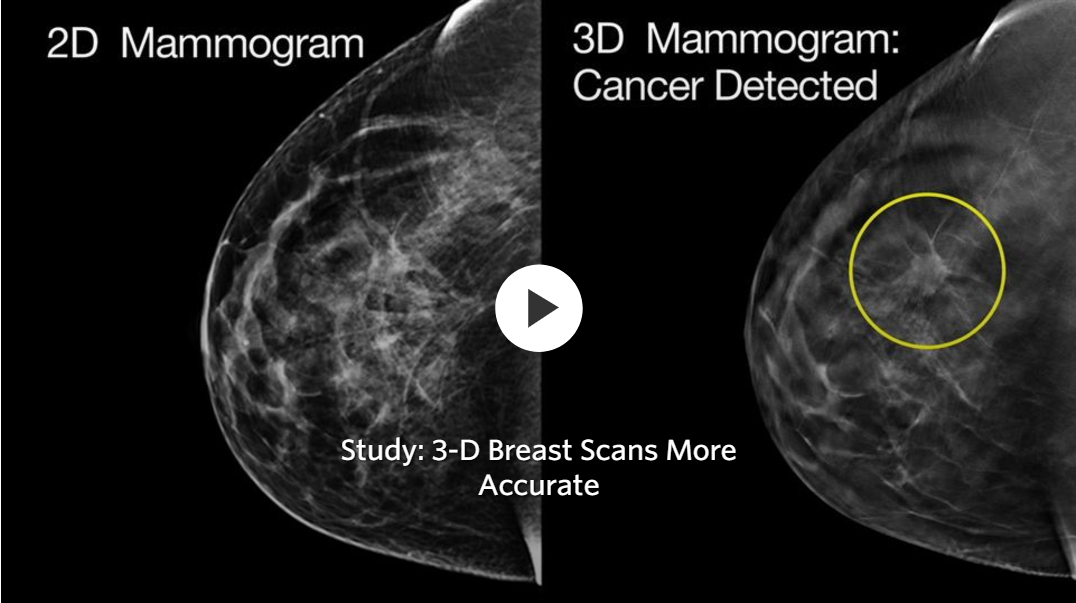 3d Scans More Accurate Than Regular Mammograms