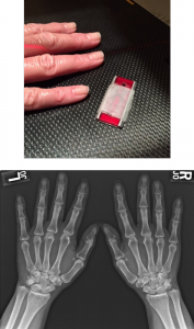 X-Ray Magnets
