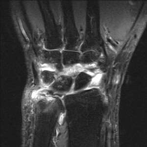 Bright white areas represent inflammation in this wrist MRI.