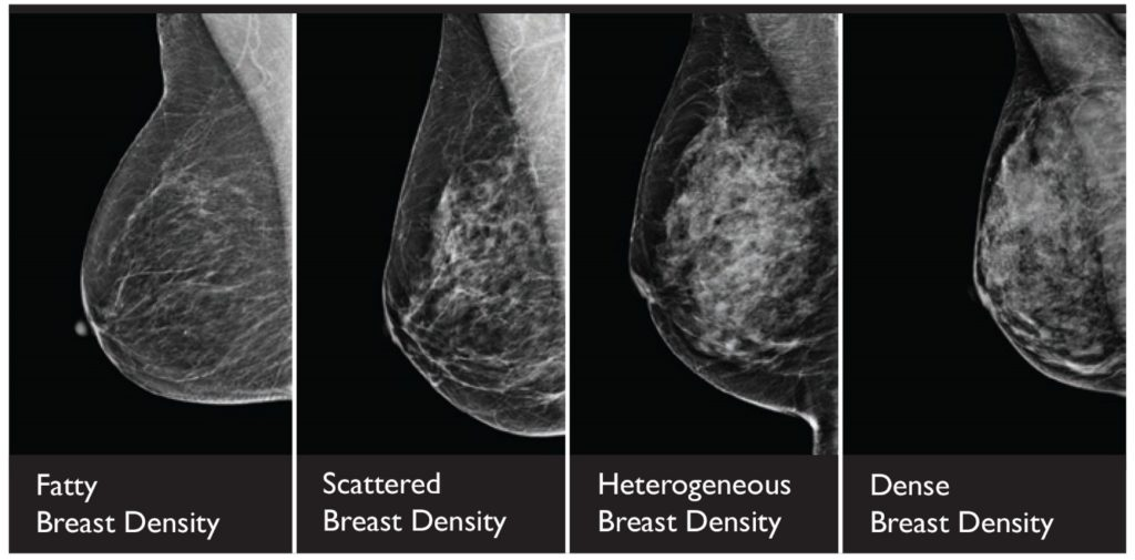 3D mammograms help detect cancers in dense breasts.