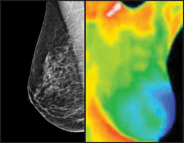 Mammography vs  Thermography: Which Is Better at Detecting