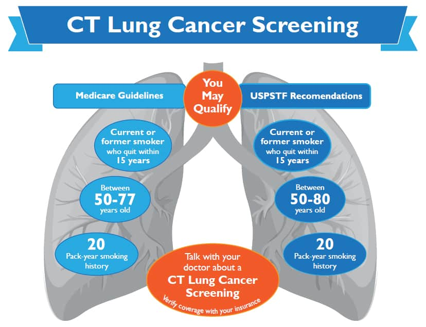 CT Lung Cancer Screening Criteria - March 2021