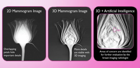 Wake Radiology UNC REX Healthcare Adopts AI Technology to Support Breast Cancer Detection