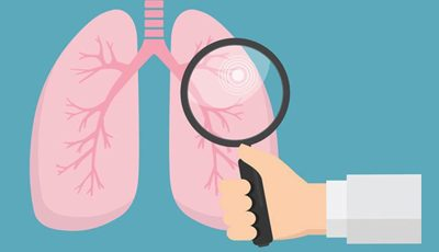 Should You Have a Lung Cancer Screening?