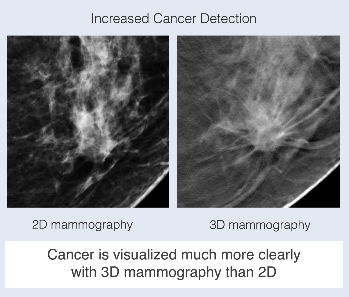 what is 3d tomosynthesis The 3d tomosynthesis is a new and improved type of mammogram that exposes you to even higher doses of radiation.