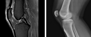 Lateral views of the knee. The left image is from a knee MRI. The right from an knee x-ray. Much more detail is available from the knee MRI.