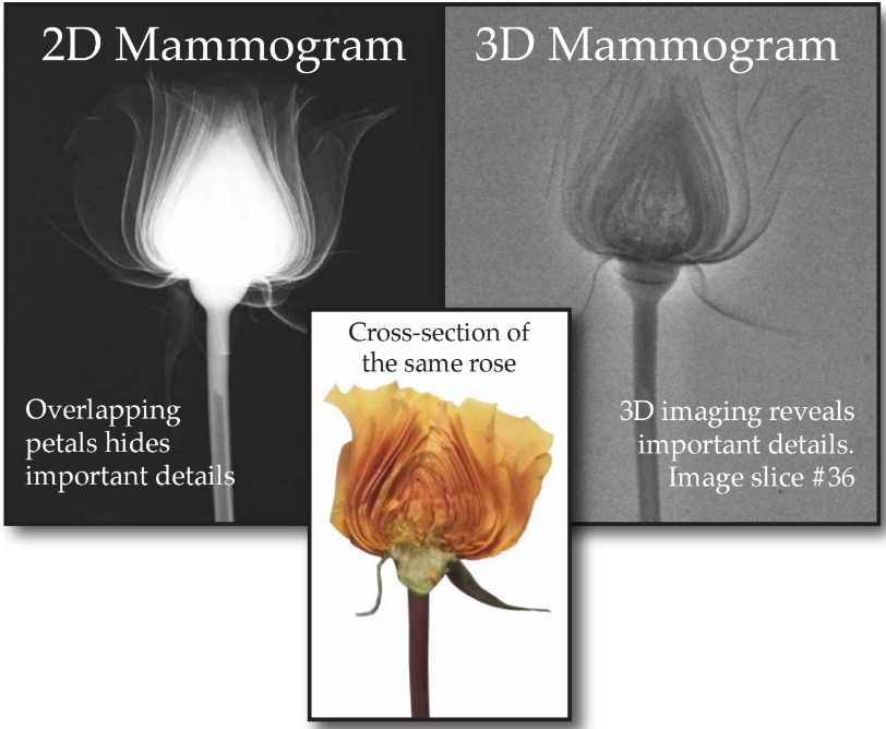 What does a mammogram look like
